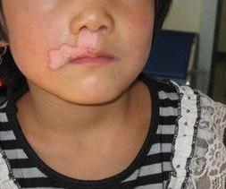 5.1小孩脸上有白斑是怎么回事.jpg